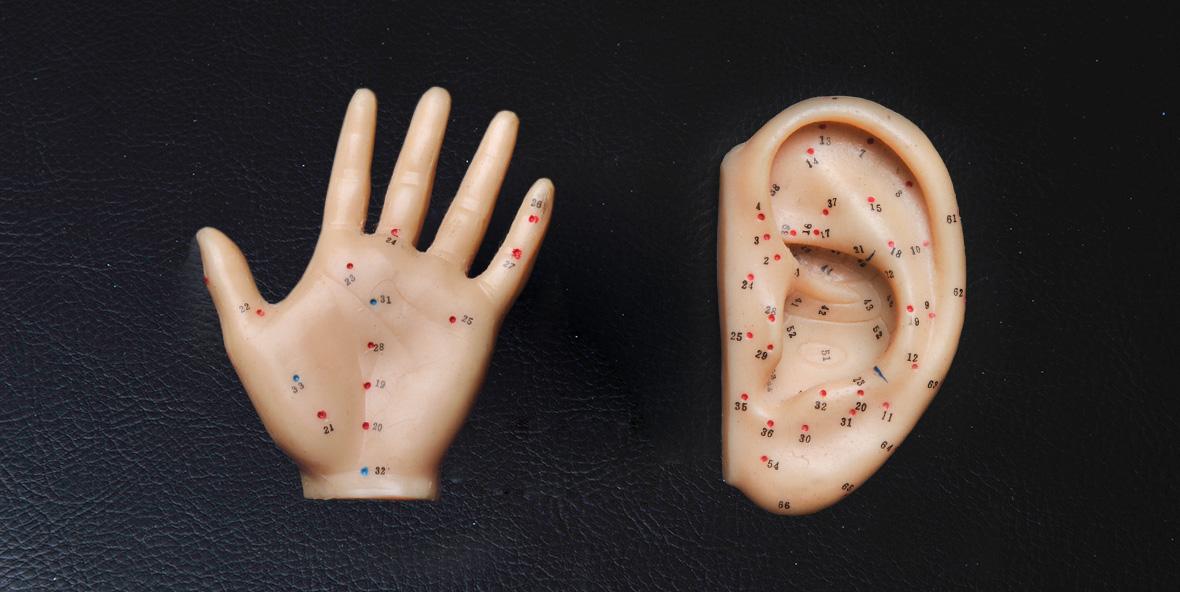 Acupunctuur Praktijk Elst
